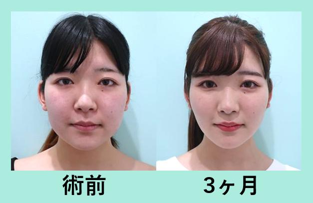頬と顎下の脂肪吸引+バッカルファット除去_術後3ヶ月ダウンタイム