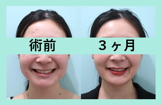 頬の脂肪吸引+バッカルファット除去_術後3ヶ月ダウンタイム